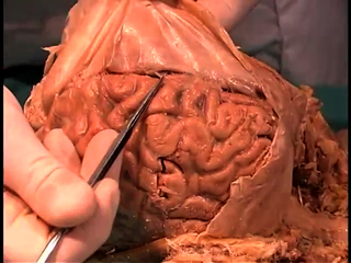 Picture from Cranial Cavity video
