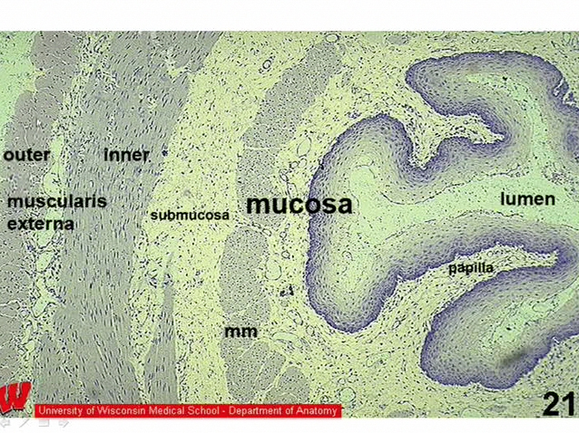 Picture from Histology Lab 14. Digestive System video