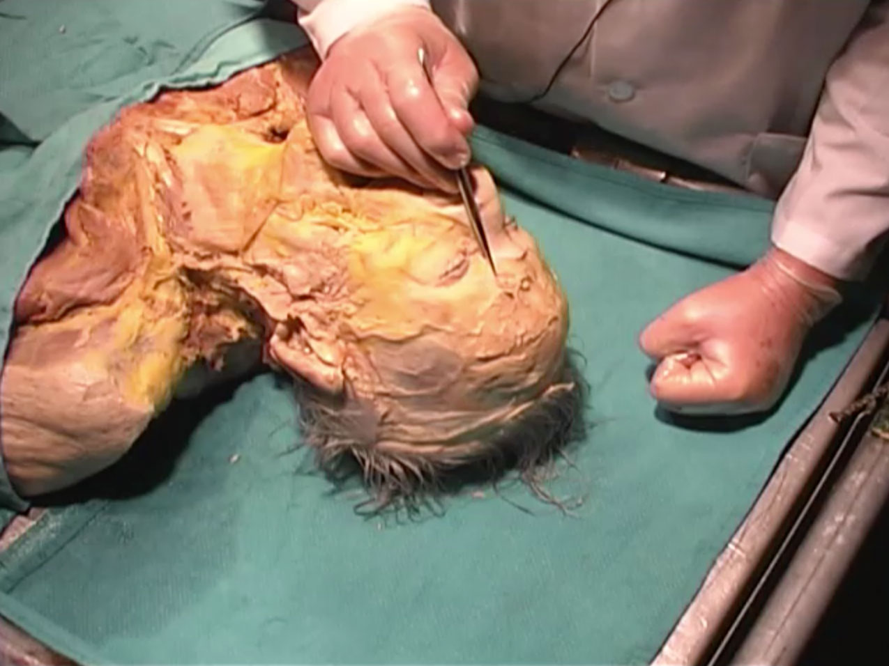 Picture from Dissection 10 Superficial Face and Neck video