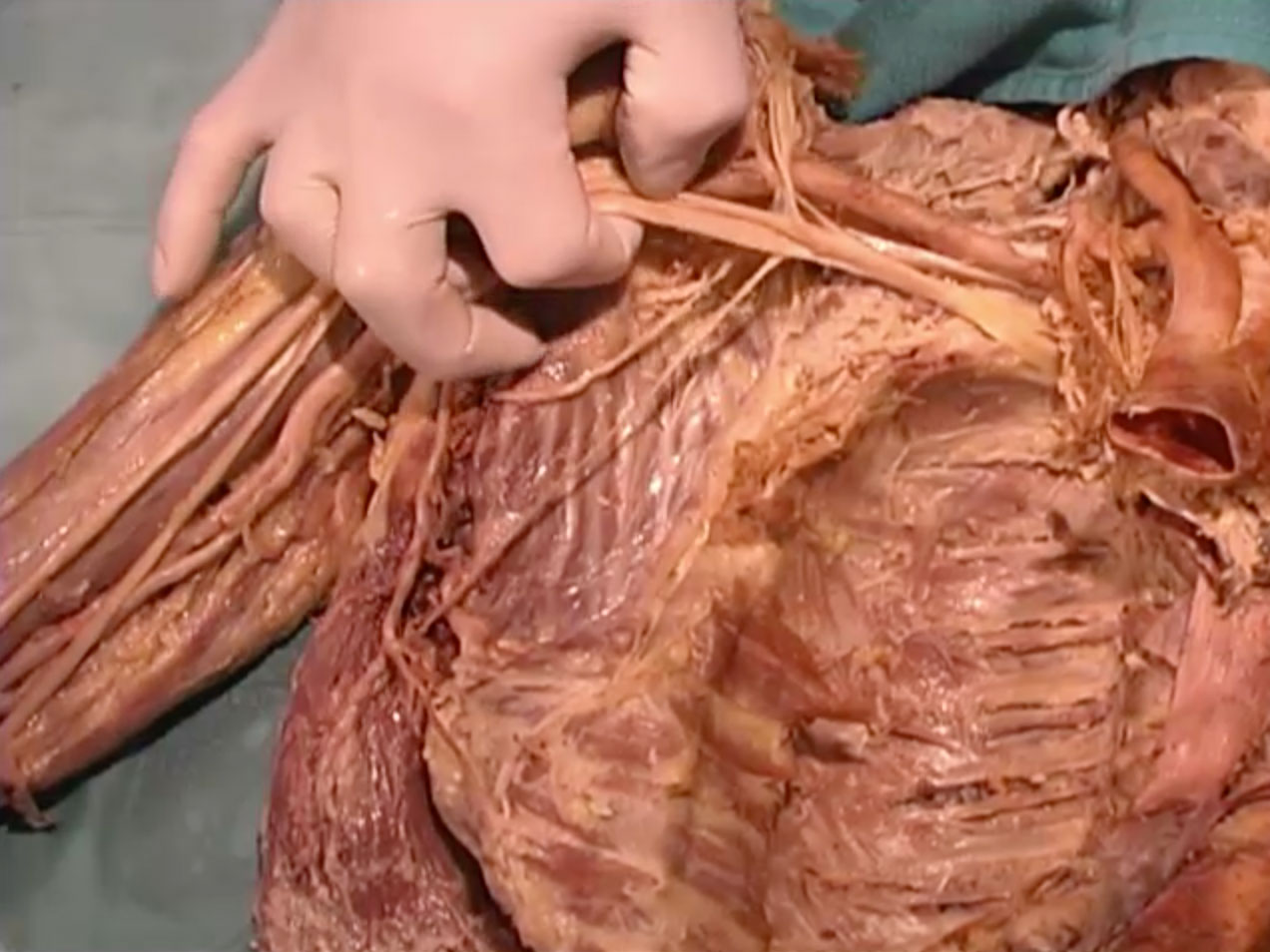 Picture from Dissection 17 Cutaneous Veins and Axilla