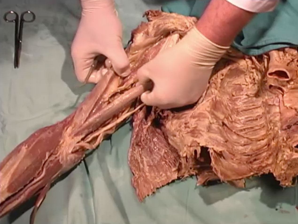 Picture from Dissection 18 Shoulder and Arm
