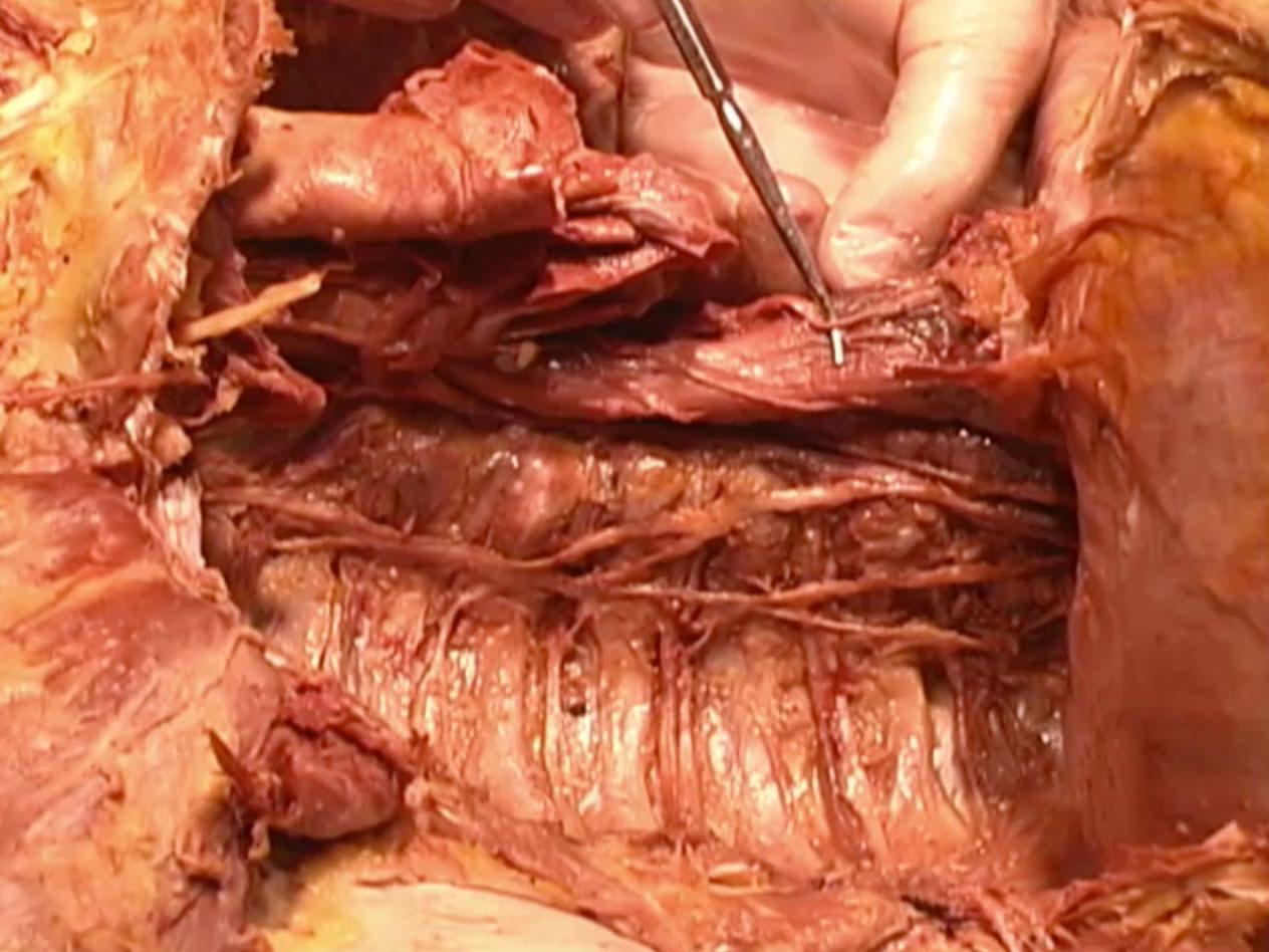 Picture from Dissection 04 Posterior Mediastinum video