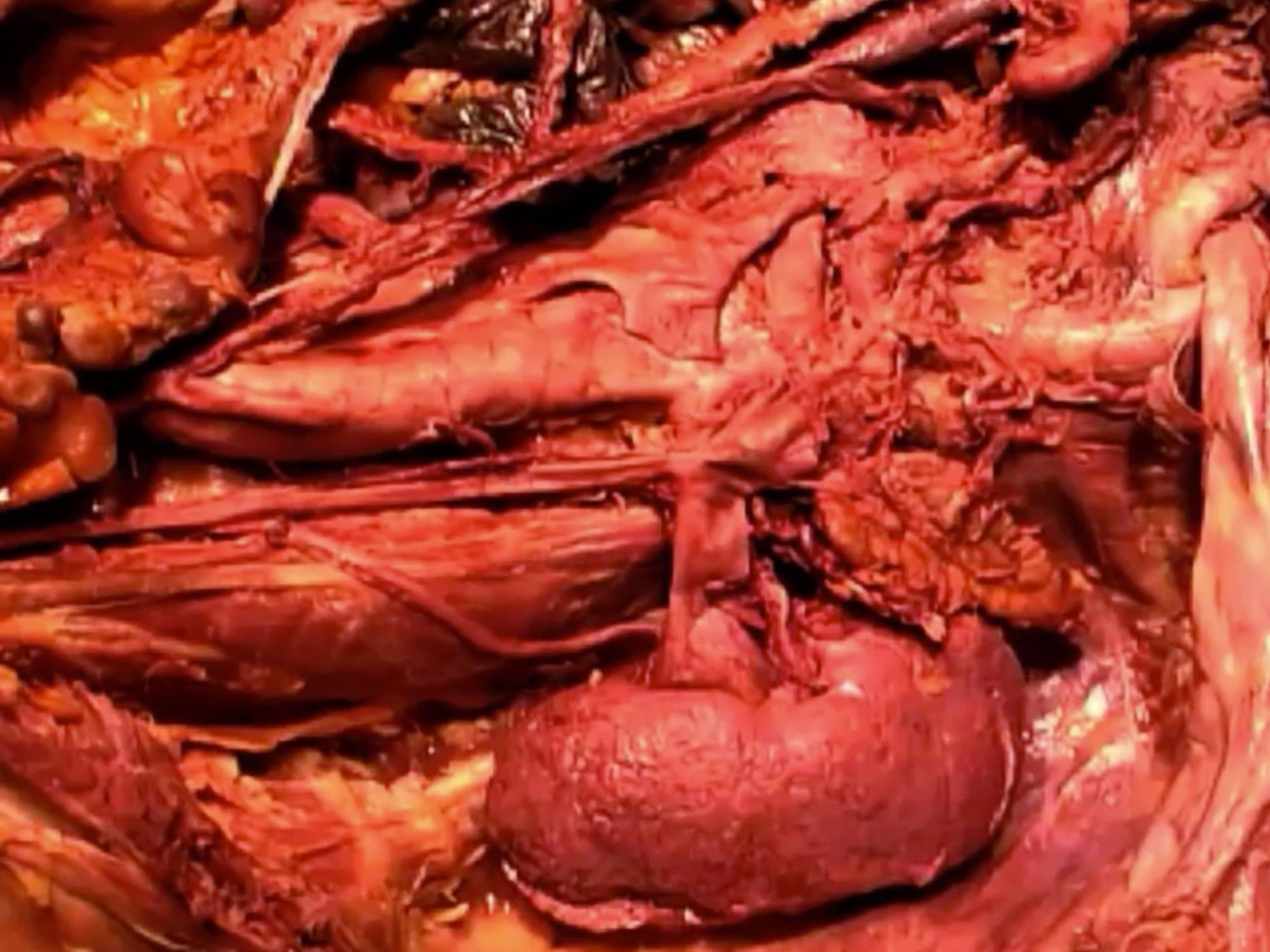 Picture from Dissection 07 Posterior Abdominal Wall video